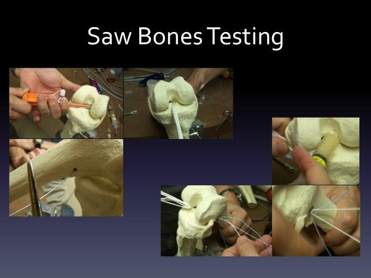 Saw Bones Testing