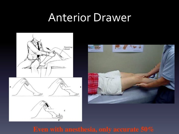 Anterior DrawerEven with anesthesia, only accurate 50%