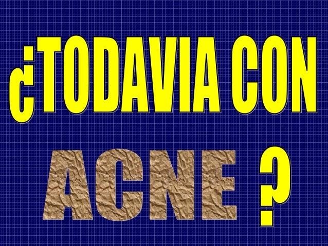 http://curanaturaldelacne.blogspot.com  TIENE LA SOLUCION PARA TI