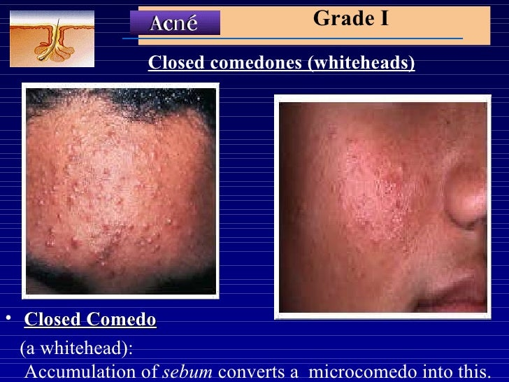accutane birth defects pictures