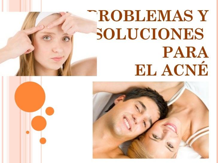 PROBLEMAS Y SOLUCIONES  PARA EL ACNÉ