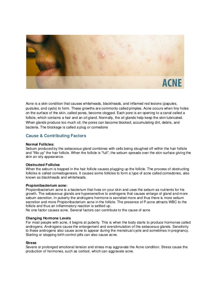 Acne is a skin condition that causes whiteheads, blackheads, and inflamed red lesions (papules,pustules, and cysts) to for...