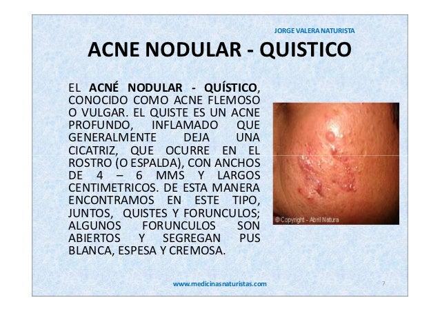 Acne Tratamiento Natural