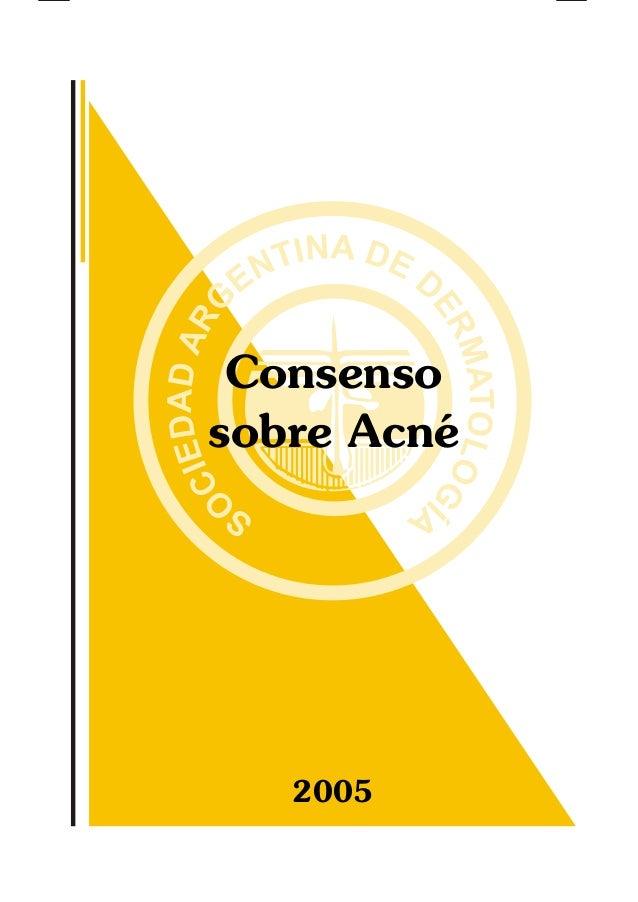 Consenso sobre Acné 2005