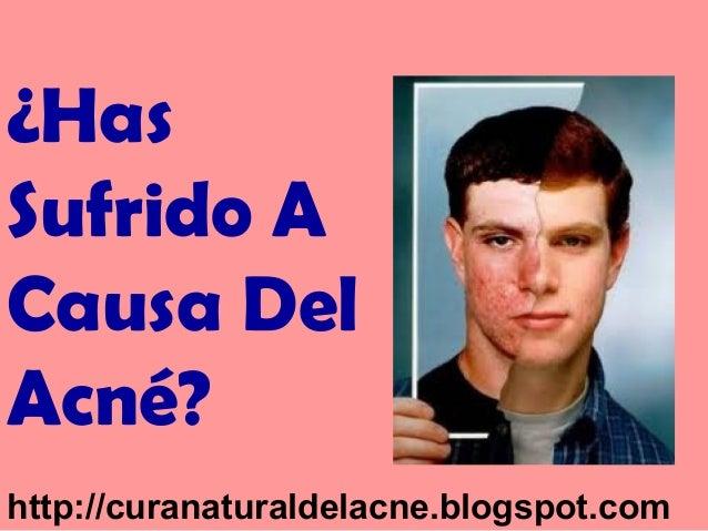¿Has Sufrido A Causa Del Acné? http://curanaturaldelacne.blogspot.com