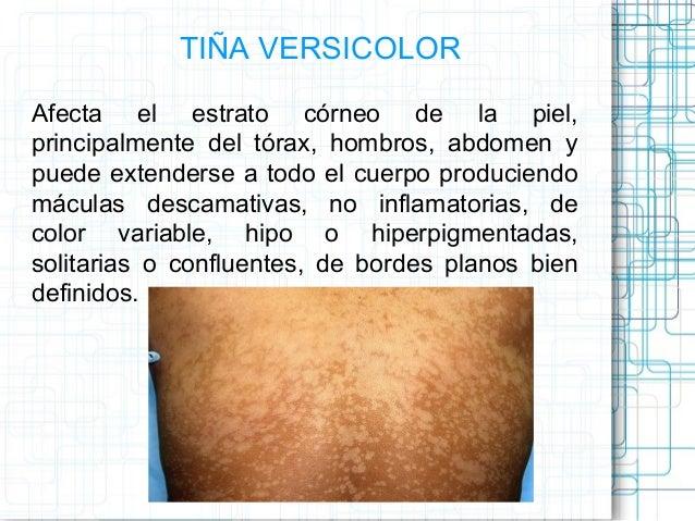La pigmentación de la piel sobre la persona como librarse