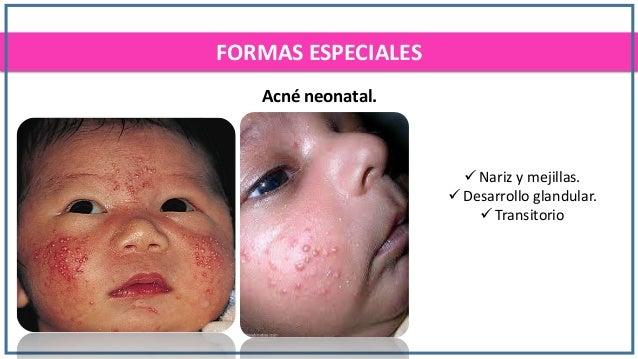 Como librarse de las manchas rojas sobre la persona después del acné