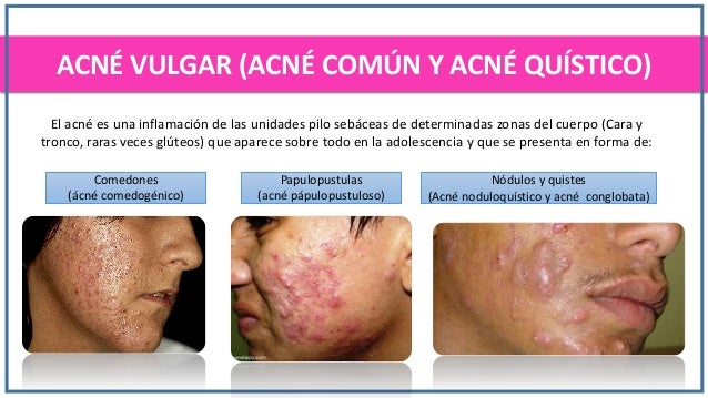 El tratamiento del acné metrogil el gel