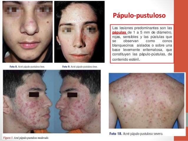 Que óleo etérico ayuda del acné