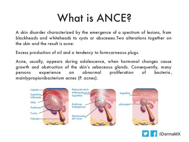 What is ANCE?A skin disorder characterized by the emergence of a spectrum of lesions, fromblackheads and whiteheads to cys...