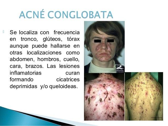 El alivio de los síntomas sheynogo de la osteocondrosis