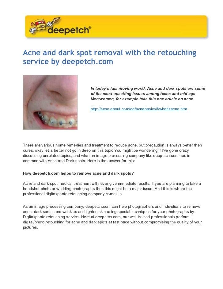 Acne and dark spot removal with the retouchingservice by deepetch.com                                      In today's fast...