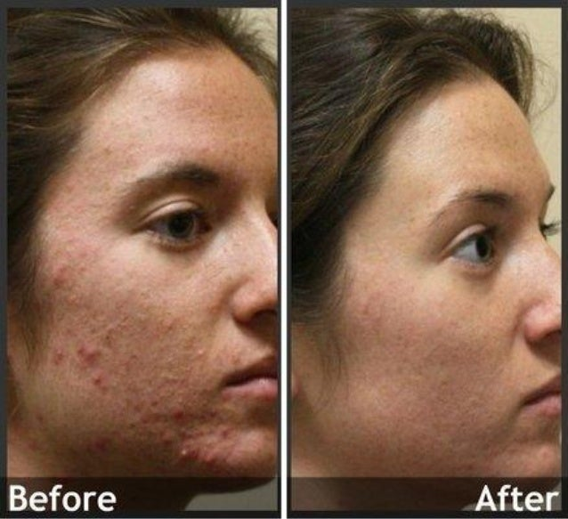 Acne Before And After Jordan