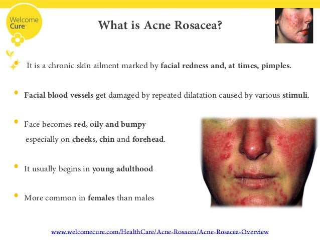 development features and treatment of acne vulgaris Acne vulgaris treatment market and new product development strategies in order to enhance their product offerings and sustaining their position in the market.