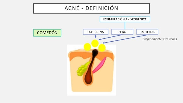 Acne rosacea Slide 3