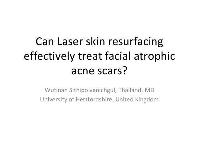 Can Laser skin resurfacing effectively treat facial atrophic acne scars? Wutinan Sithipolvanichgul, Thailand, MD Universit...
