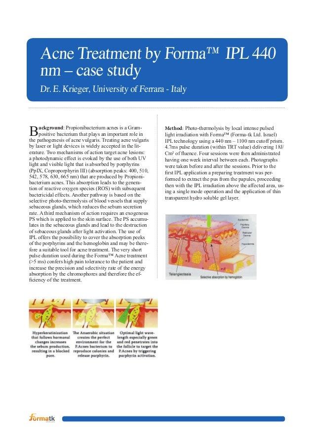 Acne Treatment by Forma™ IPL 440 nm – case study D  r. E. Krieger, University of Ferrara - Italy  B  ackground: Propion...