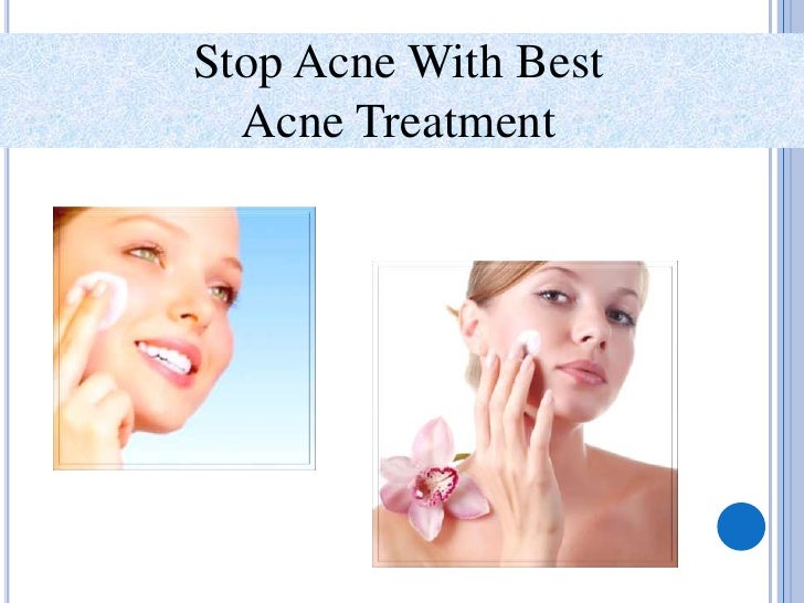 Stop Acne With Best <br />Acne Treatment<br />