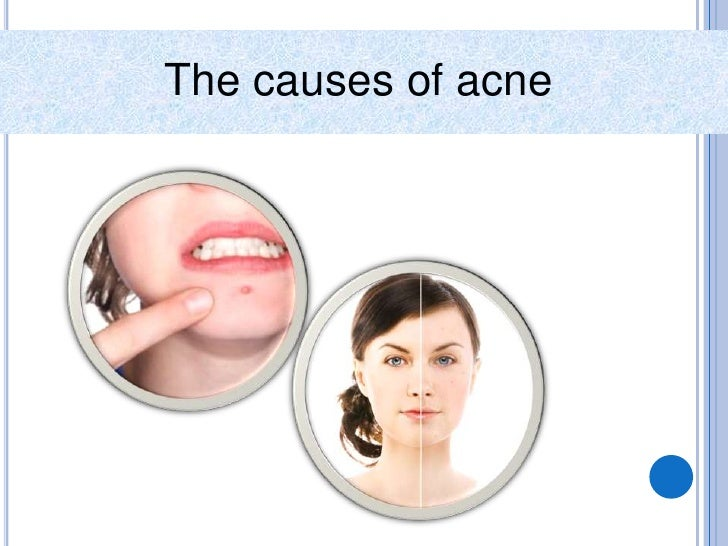 Acne Treatments Slide 2
