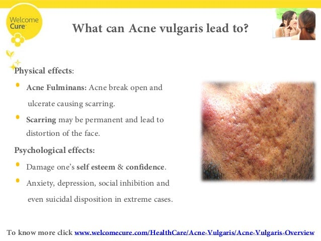 What Is Acne Vulgaris And A Glimpse Into Homeopathic Treatment For Ac