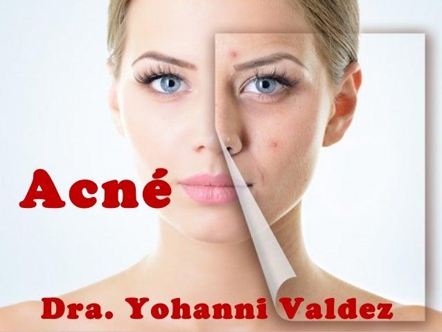 Acné  Dra. Yohanni Valdez
