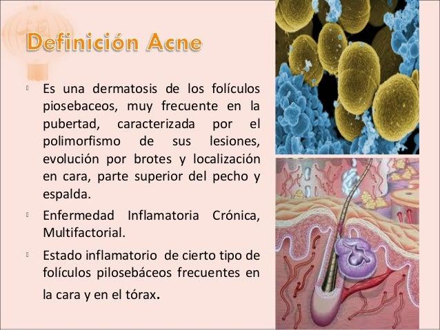 Acne y Rosacea Slide 2