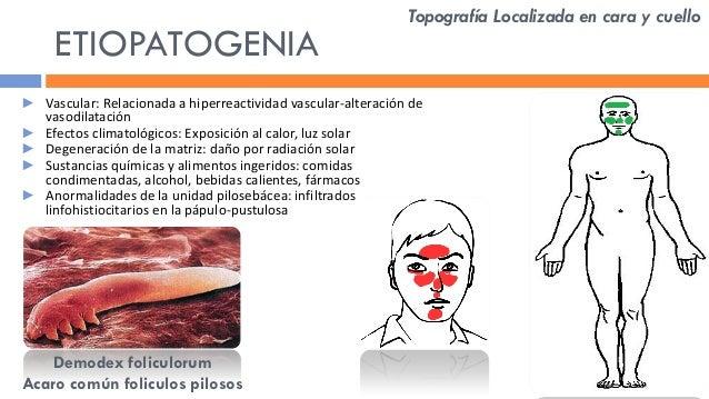 dermatitis acneiforme por esteroides