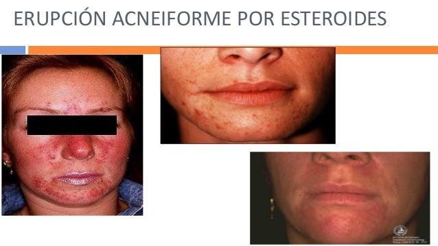 Clindamicina crema acne