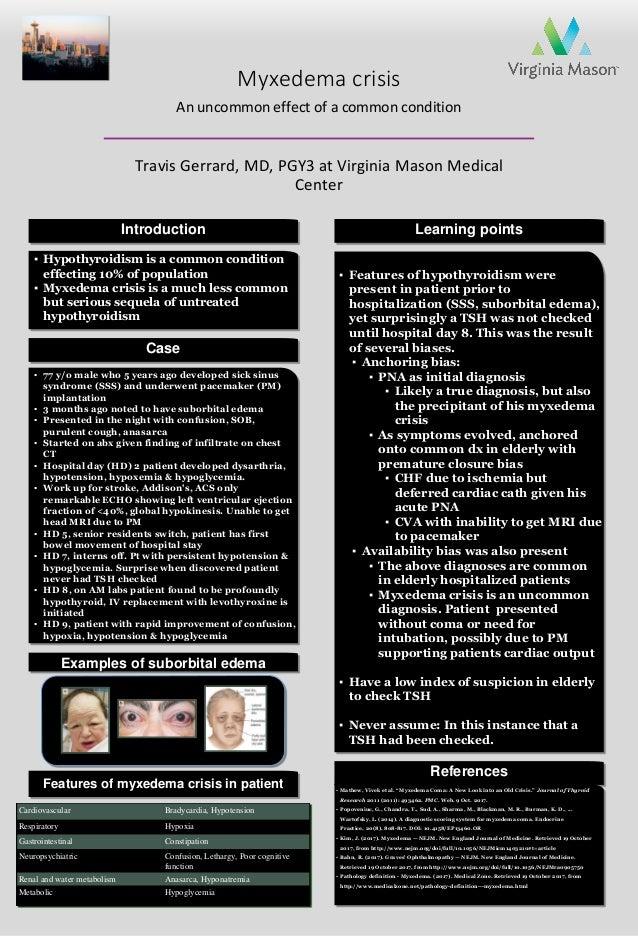 Myxedema crisis An uncommon effect of a common condition Travis Gerrard, MD, PGY3 at Virginia Mason Medical Center ▪ Hypot...