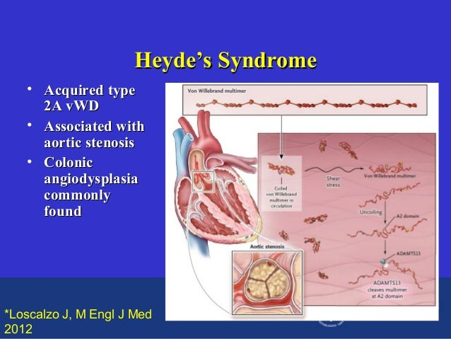 Heyde's Syndrome • Acquired type 2A vWD • Associated with aortic stenosis • Colonic angiodysplasia commonly found  *Loscal...