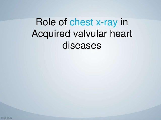 Role of chest x-ray in Acquired valvular heart diseases