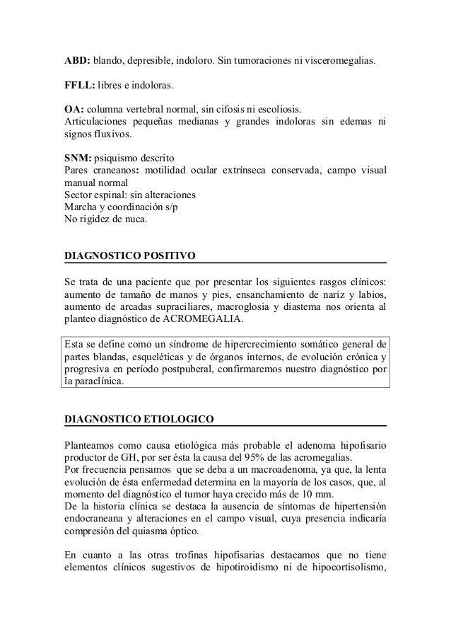 Acromegalia hist1 Slide 3