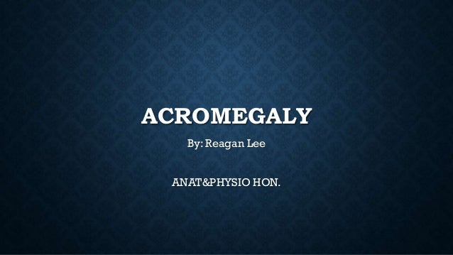 ACROMEGALY By: Reagan Lee ANAT&PHYSIO HON.