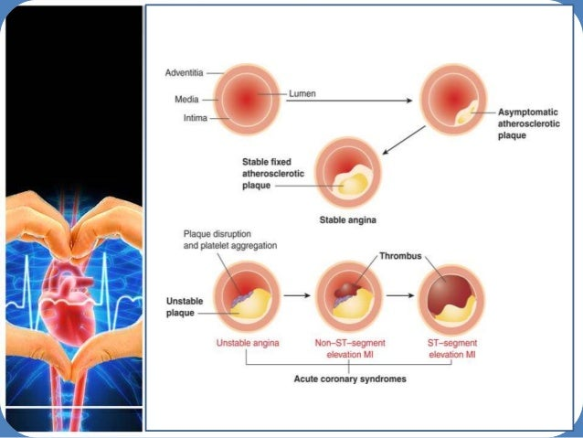 acute coronary syndrome Management of acute coronary syndrome is targeted against the effects of reduced blood flow to the afflicted area of the heart muscle, usually because of a blood clot.