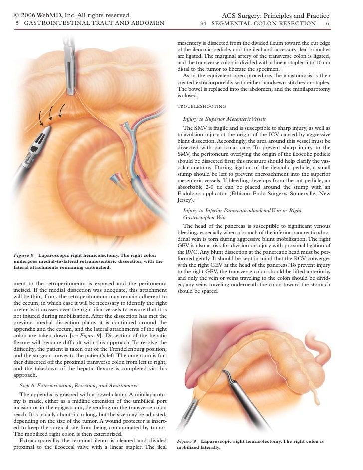 Acs0534 Segmental Colon Resection 2006