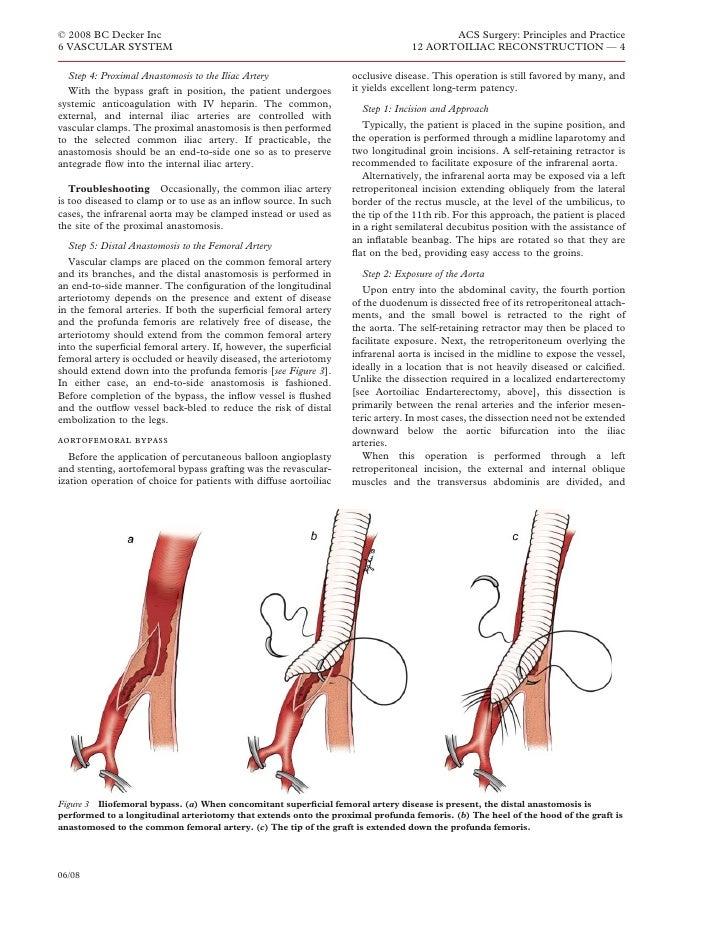 Acs0612 Aortoiliac Reconstruction