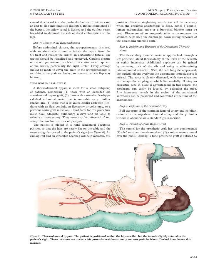 Attractive Aortobifemoral Bypass Anatomy Embellishment Anatomy And