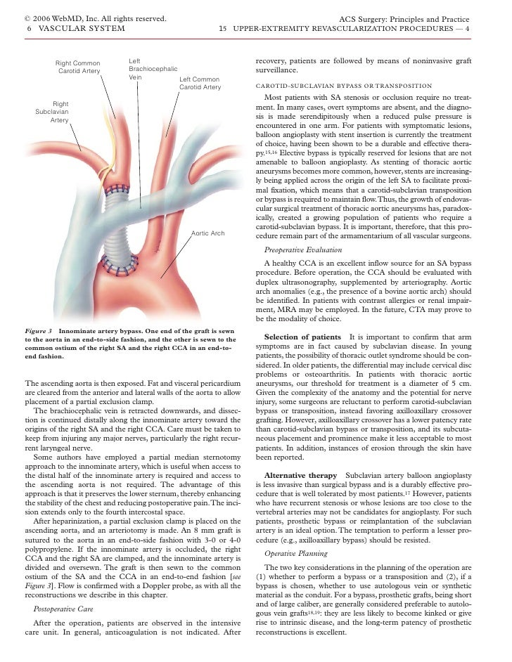 acs0615 upper extremity revascularization procedures, Cephalic Vein