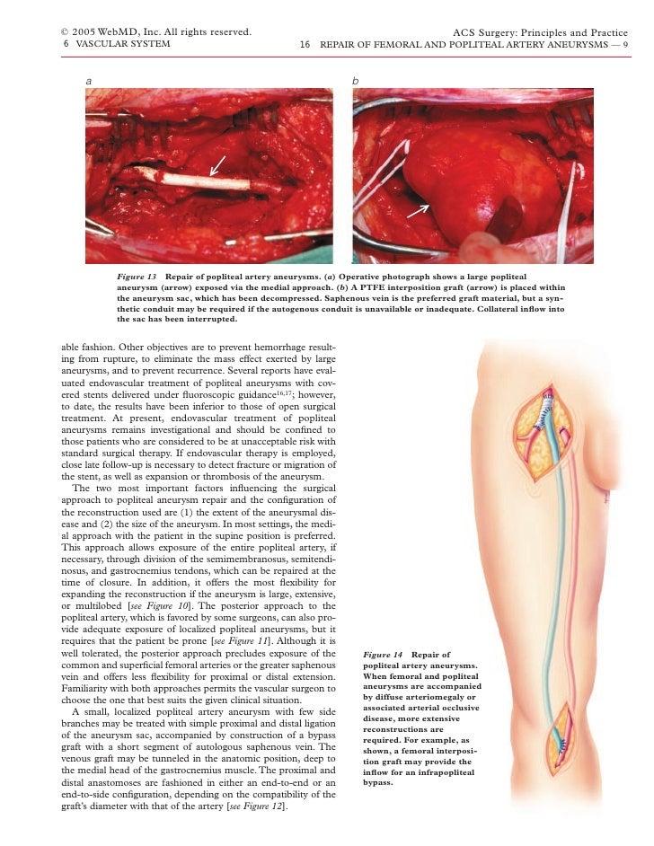 Acs0616 Repair Of Femoral And Popliteal Artery Aneurysms