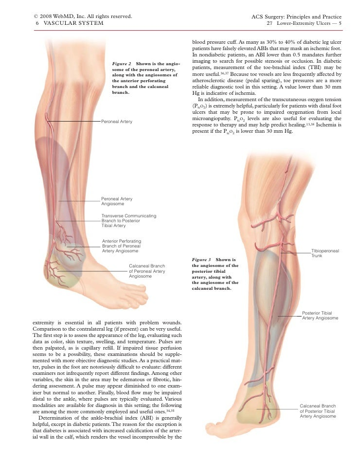 Acs0627 Lower Extremity Ulcers