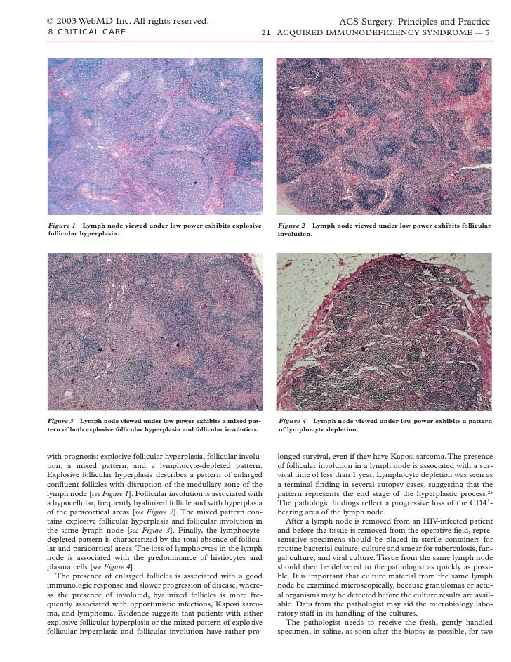 acquired immunodeficiency syndrome Dermatologic findings and manifestations of acquired immunodeficiency  syndrome (aids) mark h kaplan x mark h kaplan search for articles by this  author.