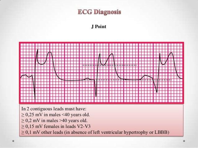 acute coronary syndrome guide for pharmacist
