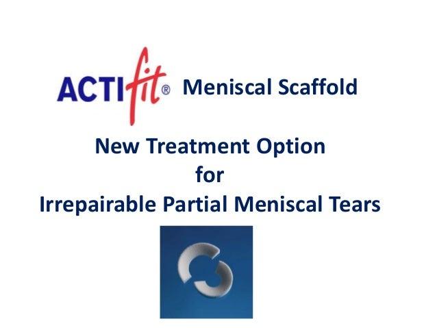 - Meniscal Scaffold New Treatment Option for Irrepairable Partial Meniscal Tears