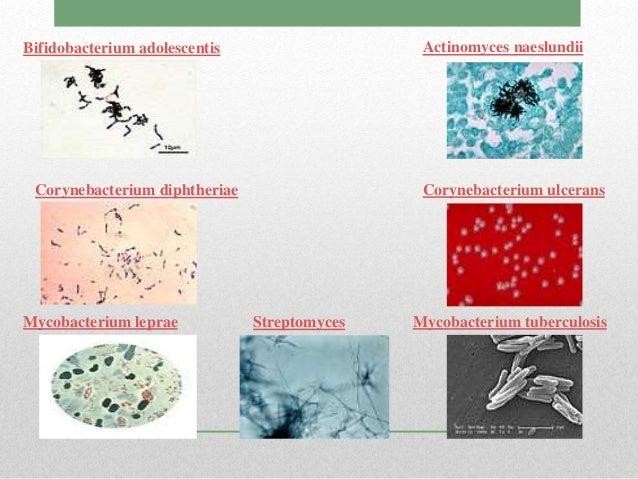 los esteroides que son