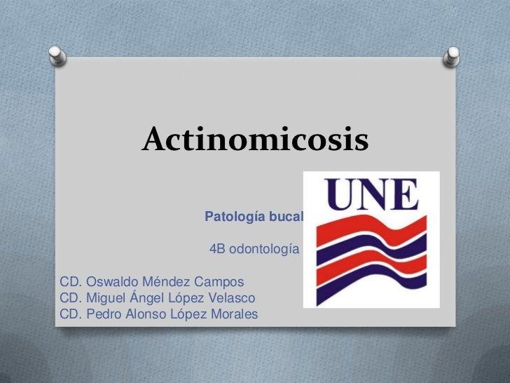 Actinomicosis                     Patología bucal                      4B odontologíaCD. Oswaldo Méndez CamposCD. Miguel Á...