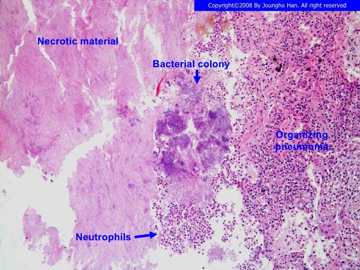 Actinomycosis lung