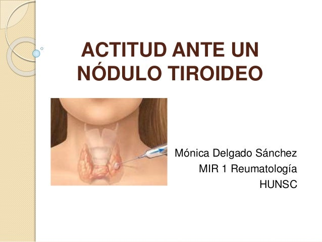 ACTITUD ANTE UN NÓDULO TIROIDEO Mónica Delgado Sánchez MIR 1 Reumatología HUNSC