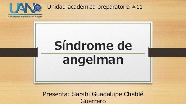 Síndrome de angelman Presenta: Sarahi Guadalupe Chablé Guerrero Unidad académica preparatoria #11