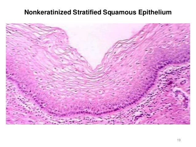 Stratified squamous keratinized epithelium labeled