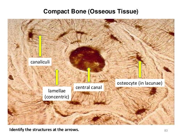 Labeled Compact Bone Tissue Diagram Labeled Osteon Of ...